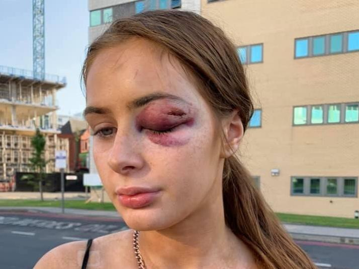 Woman punched unconscious after telling man who followed her from