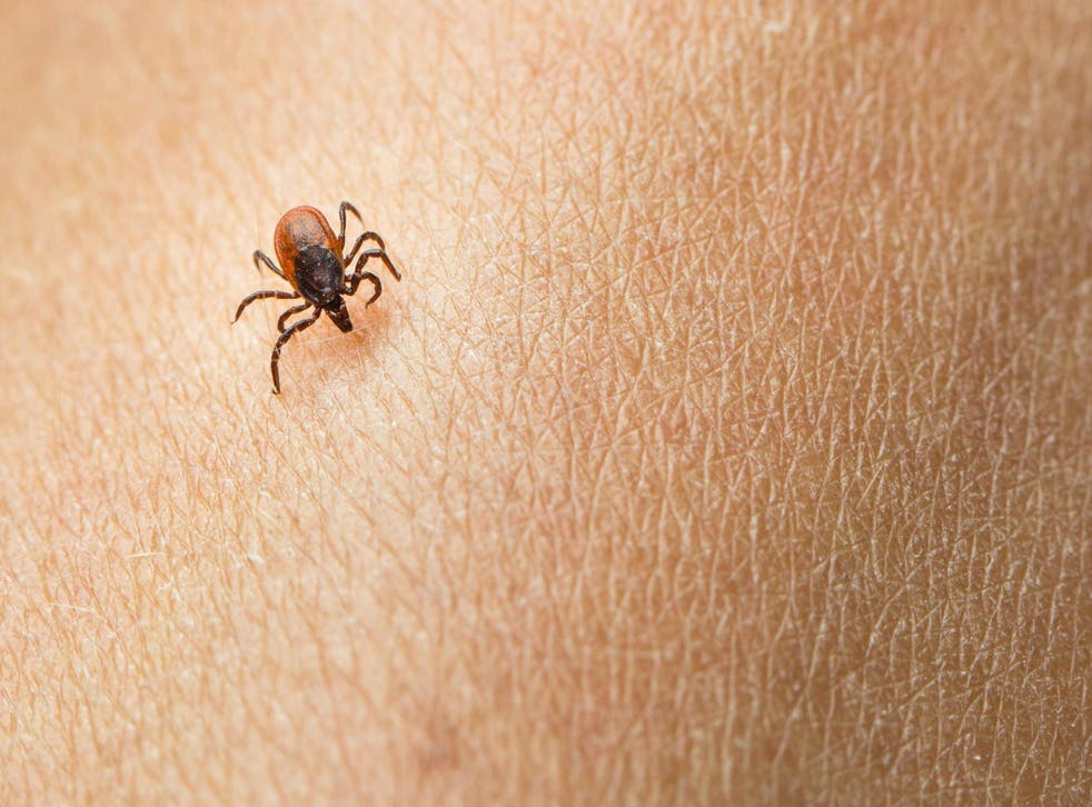 A man learned his eye discomfort was caused by a tick