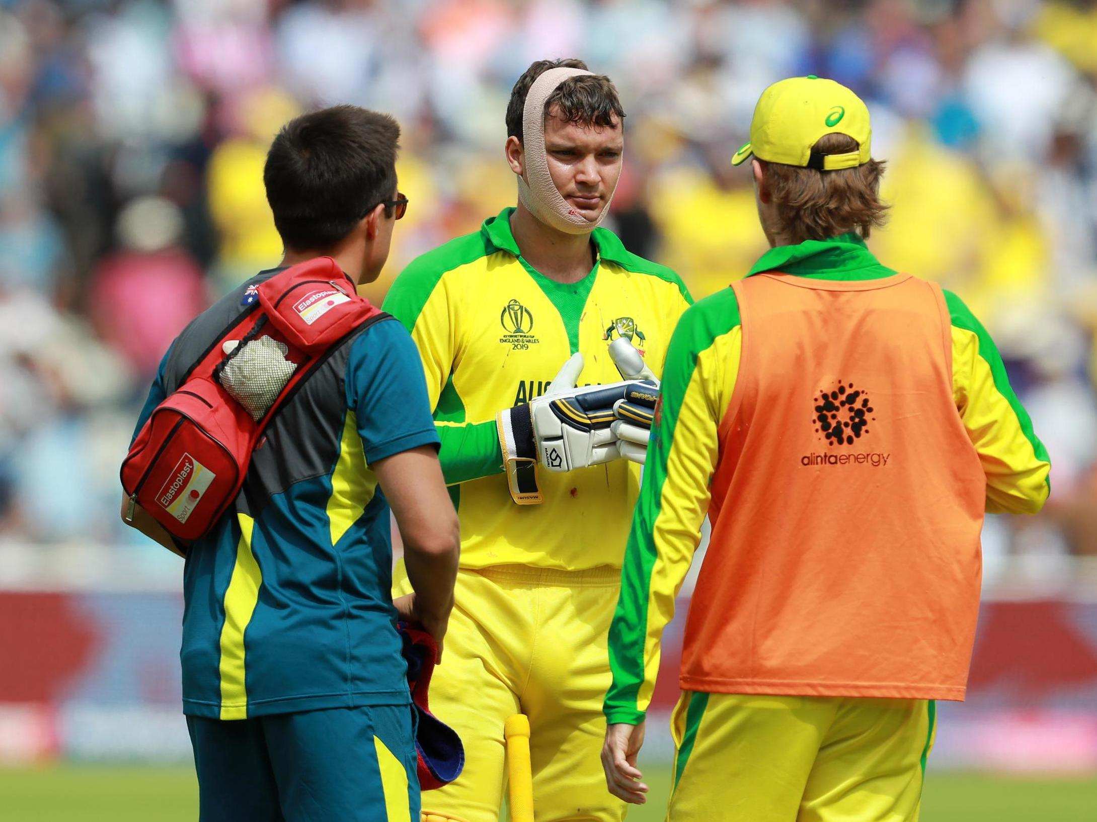 Ashes 2019: ICC approves concussion 'like for like' substitutes in international cricket