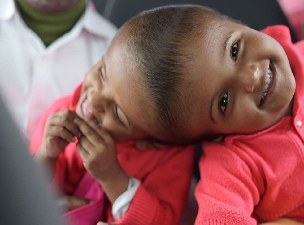 Bangladeshi twins Rabeya and Rukaya have been separated after three lengthy and intricate operations