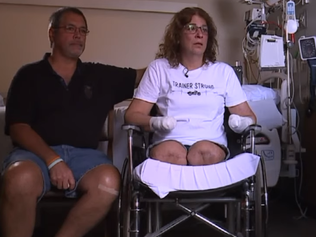 Ms Trainer said coping with the news that her hands and legs had been removed was very hard