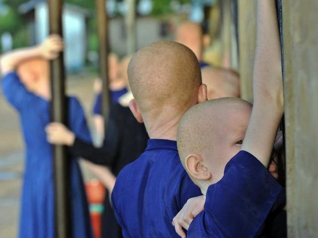 Albinos have previously been targeted for their body parts