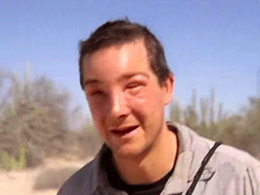 Bear Grylls suffers almost deadly allergic reaction to bee sting while filming new show