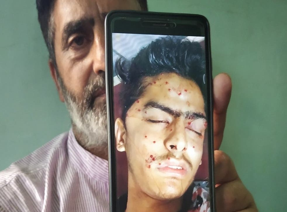 Firdous Ahmed with a picture of his son shortly after he was admitted to hospital on 6 August