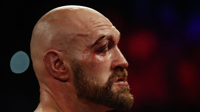 Fury's eye impaired his vision for much of the fight