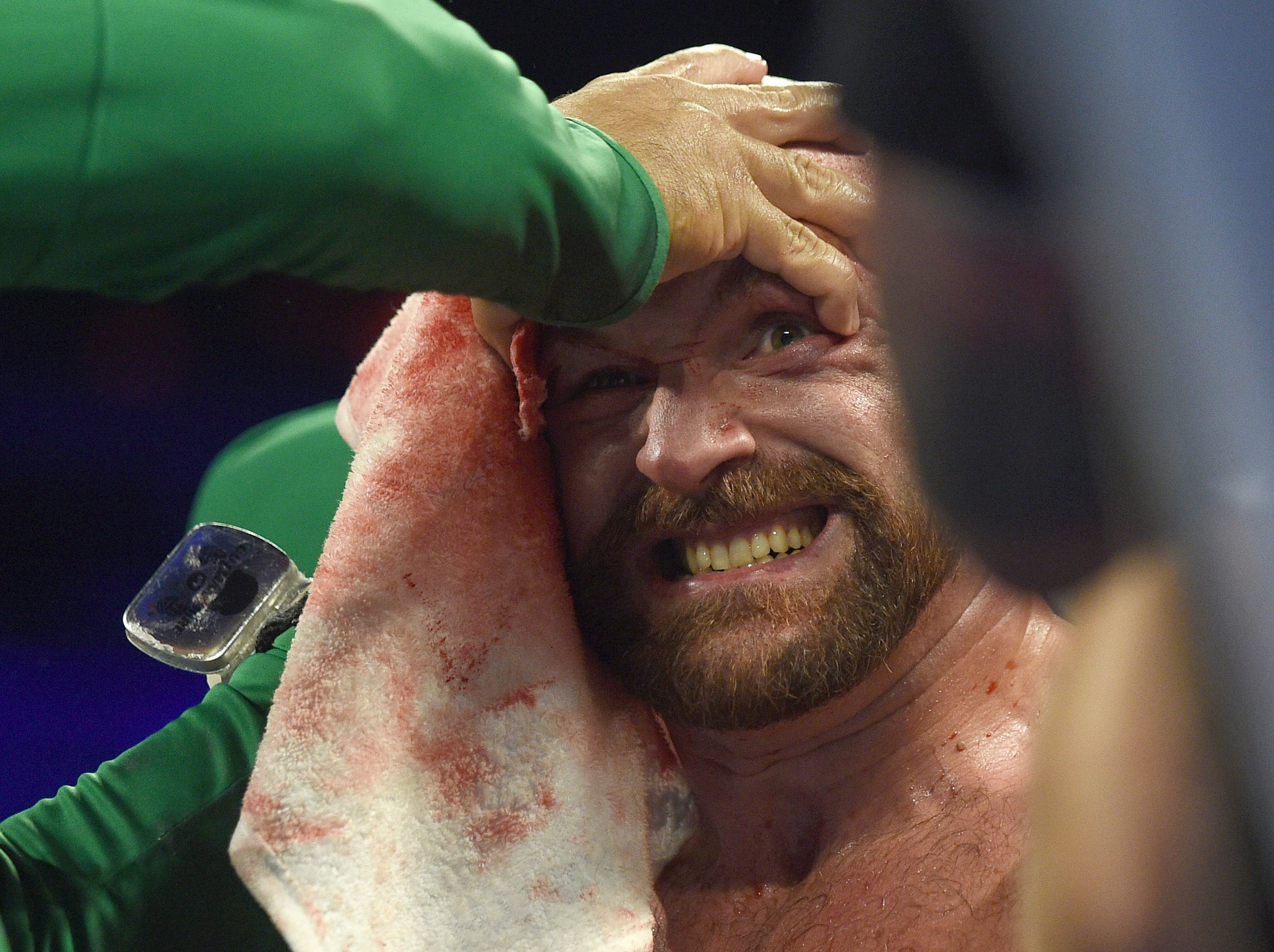 Tyson Fury taken to hospital with severe cuts after Otto Wallin win