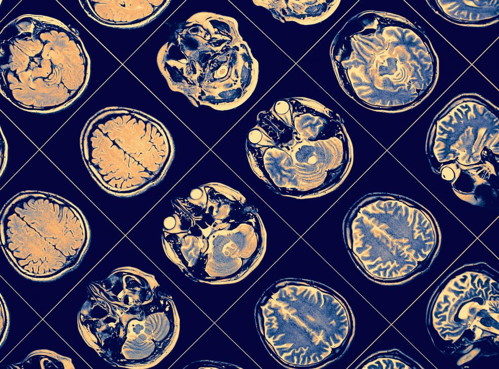 MRI results for those with transient global amnesia come up entirely normal