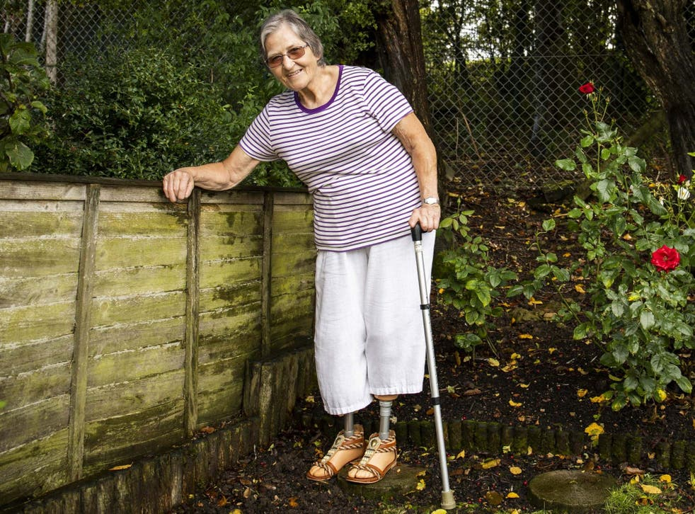 Susan Buttery, 68, contracted a deadly infection which resulted in losing parts of her fingers and both legs