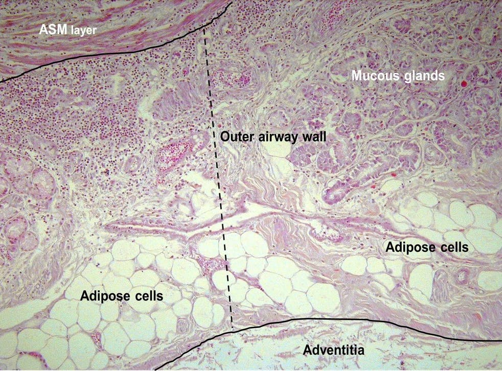 Pictured is accumulation of fat (adipose cells) on the airway inside the lungs of someone who died from an asthma attack