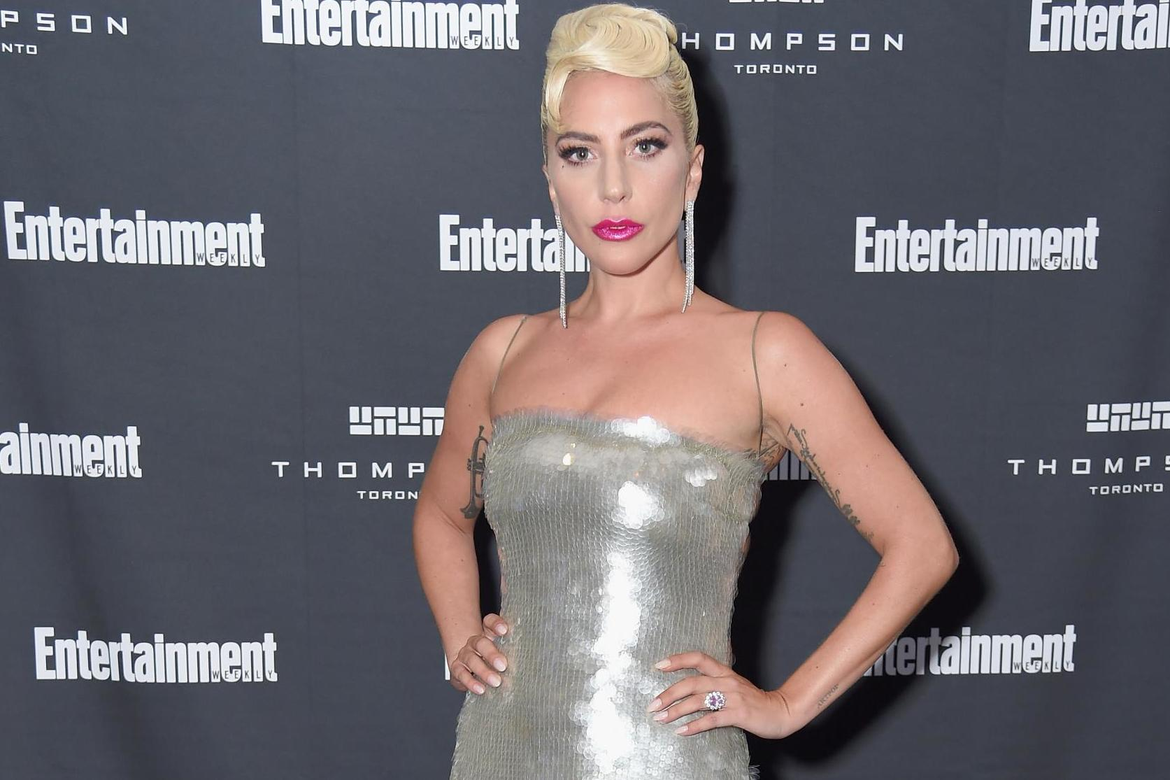 Lady Gaga reveals she had X-rays taken of 'almost' entire body after concert fall