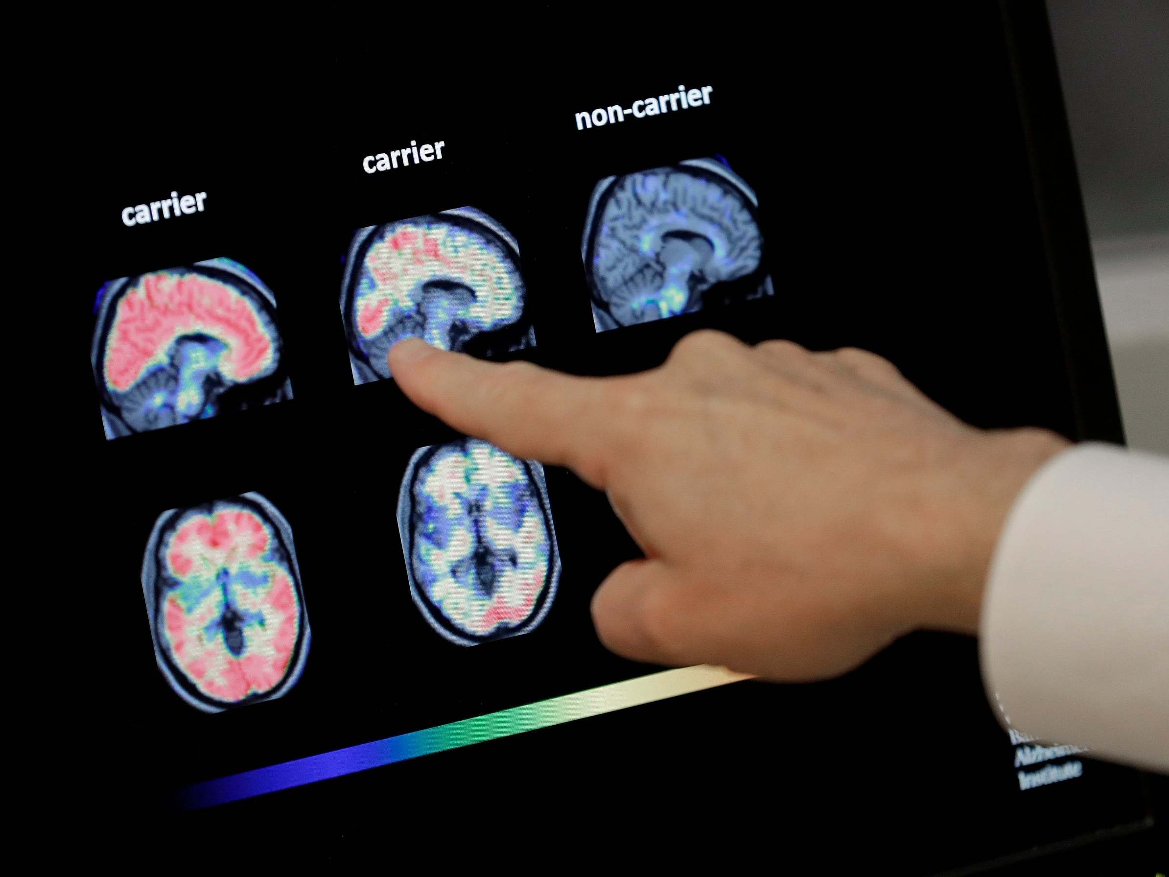 First drug to slow Alzheimer's disease could soon be on the market