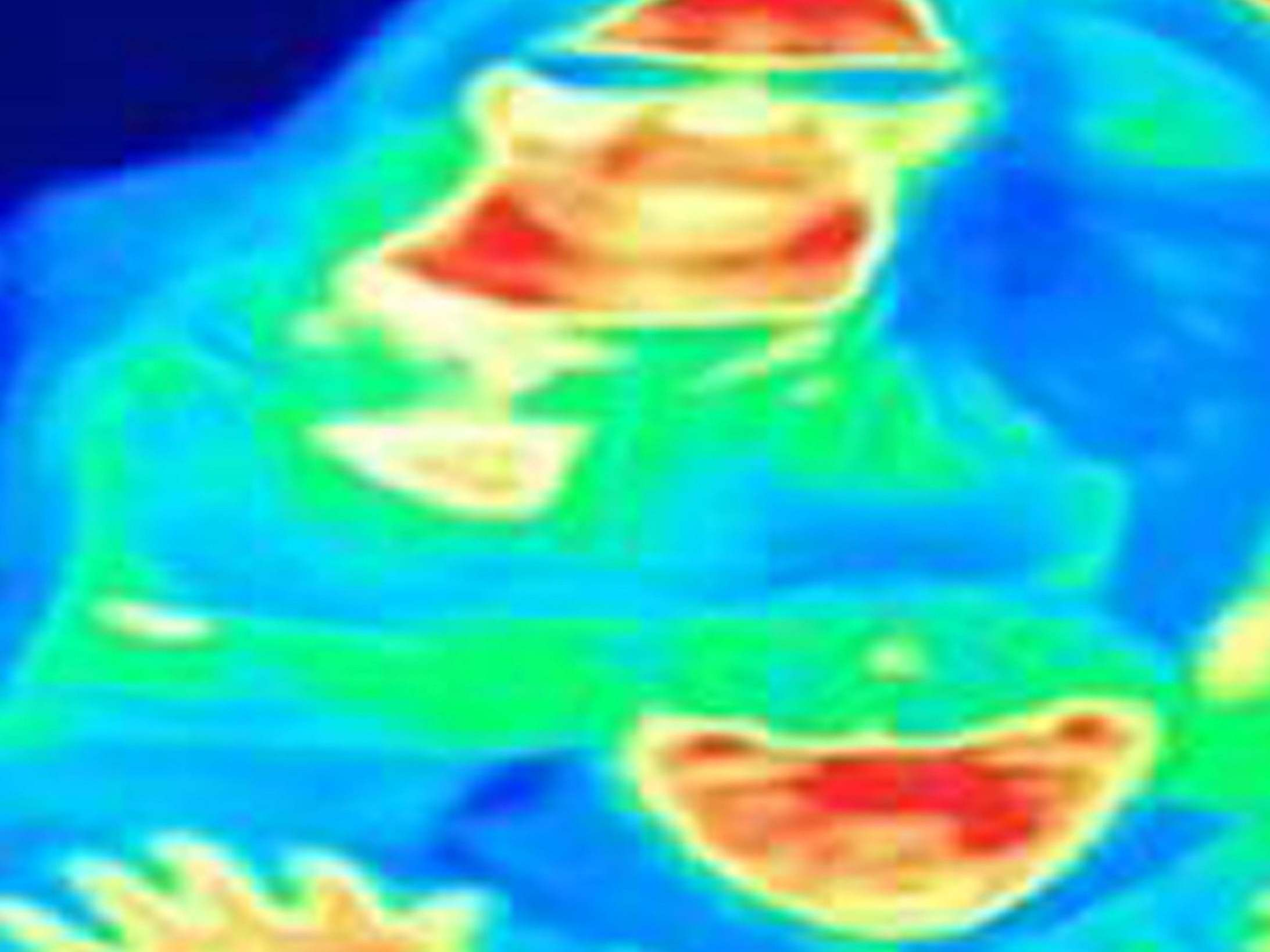 Woman's breast cancer detected by thermal imaging scan at tourist attraction
