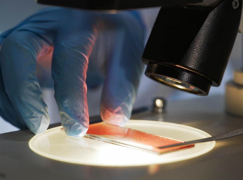 Scientists carried out tests on 725 separate cancer cell lines grown from patients with 25 different cancer types
