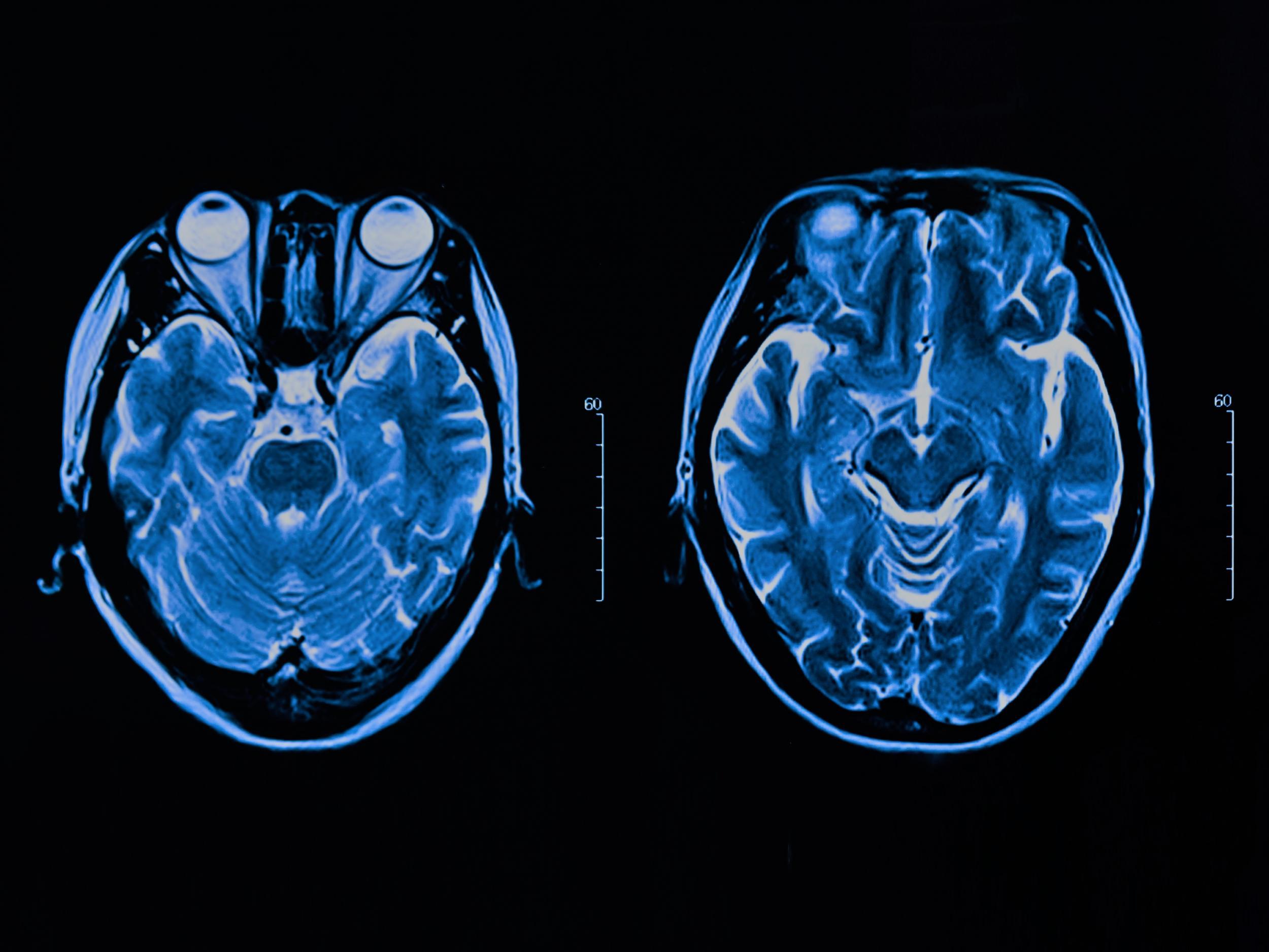 Artificial intelligence: DeepMind unlocks secrets of human brain using AI learning technique