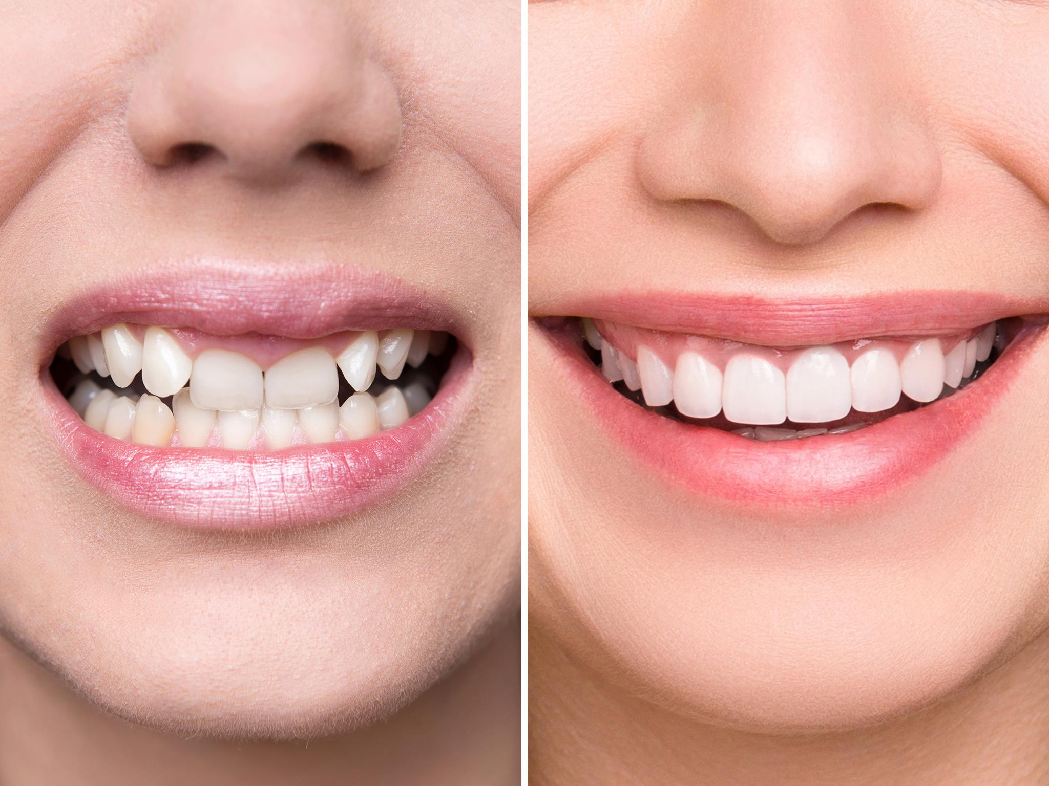 The Dentistry Company Causing Smiles To Turn Into Frowns The Independent The Independent