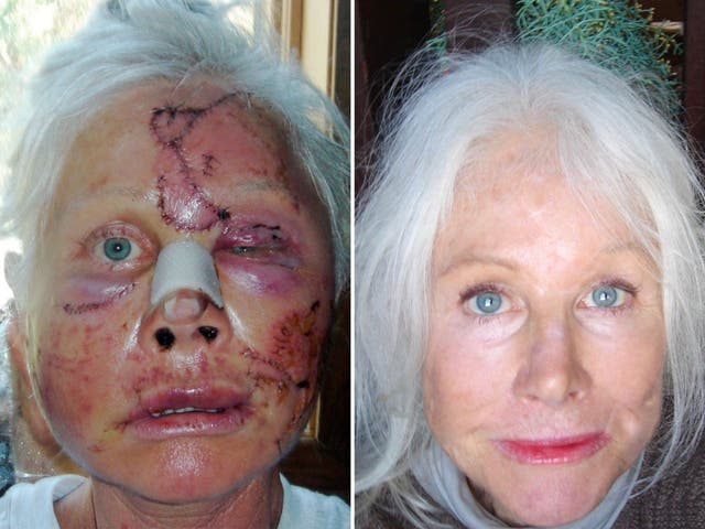 Allena Hansen (pictured then and now) says the aftermath of her bear attack in 2008 was worse than the actual attack