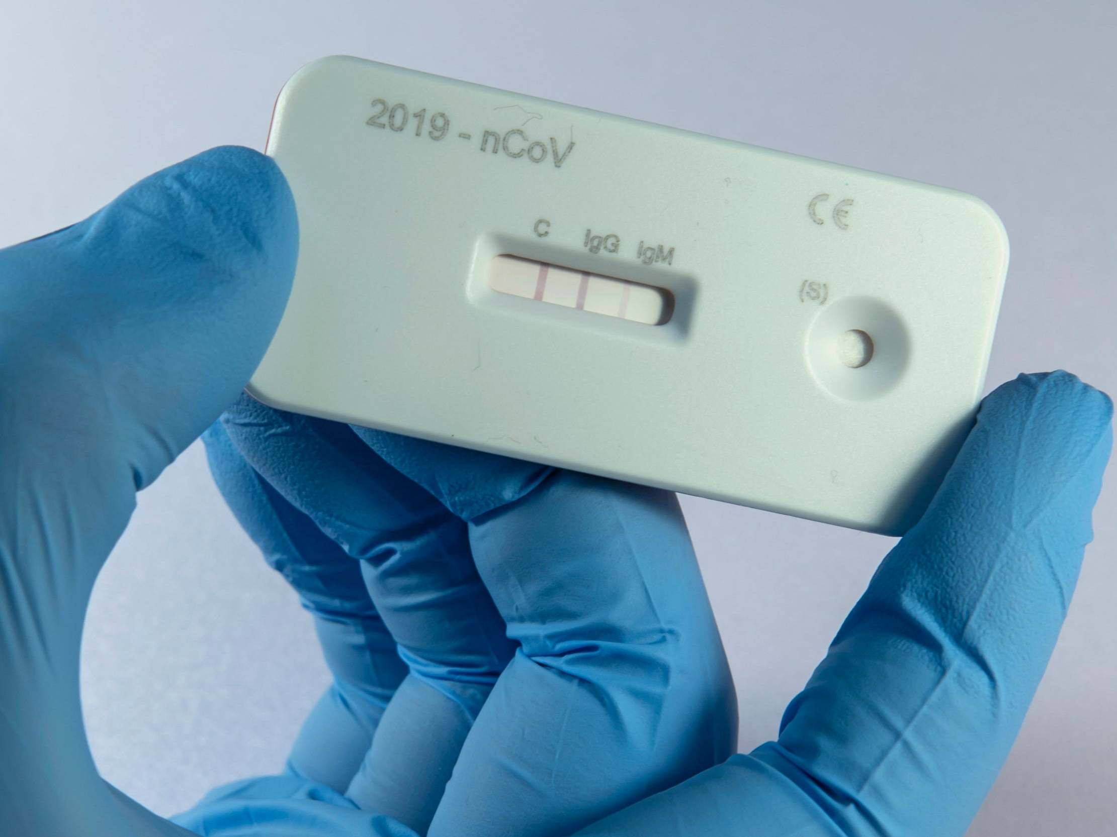 Coronavirus antibody home tests not reliable, study finds thumbnail