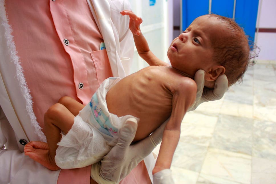 'Perfect storm': 2020 could be worst year yet for hunger in Yemen with millions on brink of famine